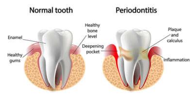 periodontitida En